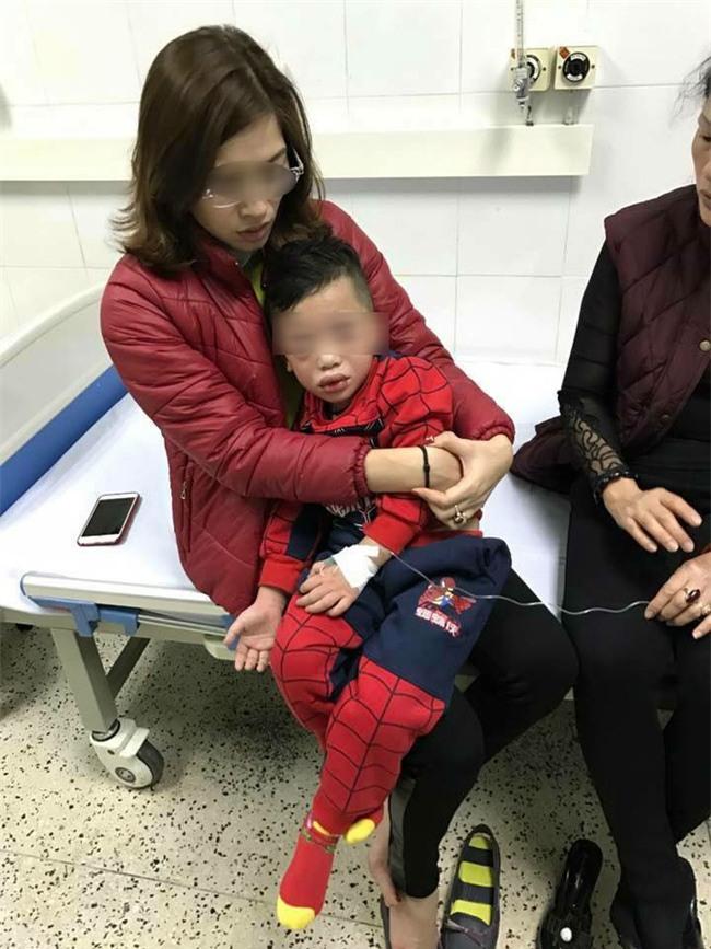 Mùng 3 Tết, bé trai nhập viện trong tình trạng mặt mũi sưng vù vì uống trà sữa? - Ảnh 2.