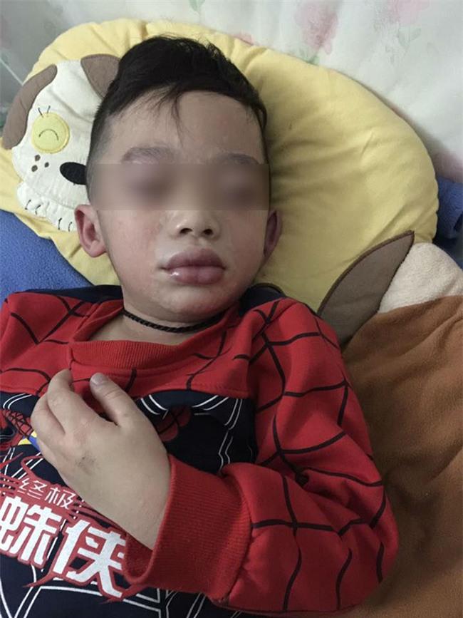 Mùng 3 Tết, bé trai nhập viện trong tình trạng mặt mũi sưng vù vì uống trà sữa? - Ảnh 3.