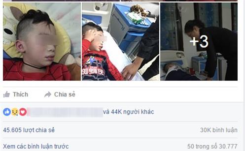 Mùng 3 Tết, bé trai nhập viện trong tình trạng mặt mũi sưng vù vì uống trà sữa? - Ảnh 4.