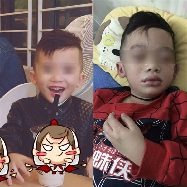 Mùng 3 Tết, bé trai nhập viện trong tình trạng mặt mũi sưng vù vì uống trà sữa? - Ảnh 5.