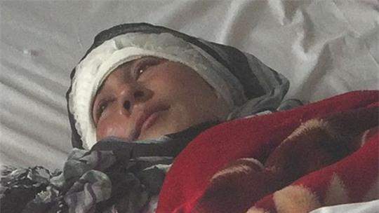 Zarina - hiện điều trị chấn thương tại bệnh viện và đang trong tình trạng ổn định. Ảnh: BBC