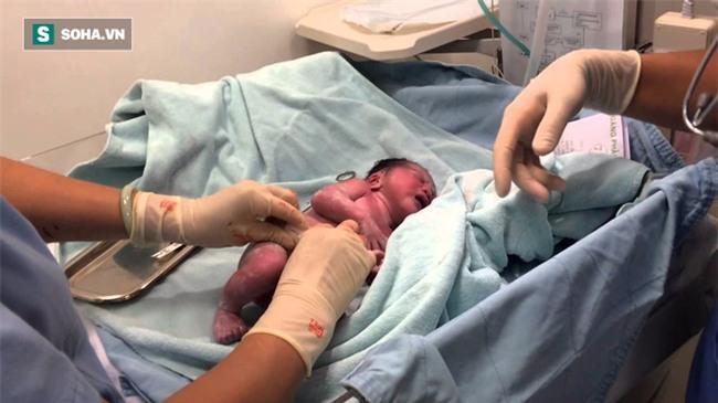 TS Nguyễn Khánh Hòa: Trì hoãn việc cắt rốn cho trẻ 3 phút, lợi ích không ngờ suốt đời - Ảnh 1.