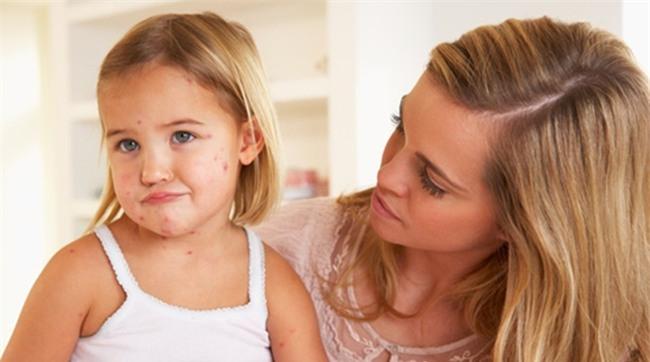 Nhà có người mắc 1 trong 5 bệnh sau, hãy cảnh giác vì chúng có khả năng di truyền - Ảnh 3.