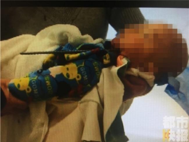 Mải đùa nghịch mà không có người lớn trông coi, bé trai 2 tuổi bị thanh cốt thép đâm xuyên hộp sọ - Ảnh 3.