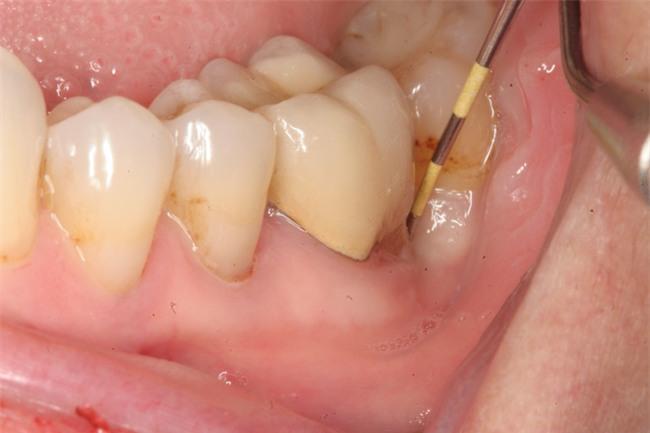 Ông bố 26 tuổi tử vong vì một chiếc răng sâu: Nhiều người lo lắng vì từng phạm sai lầm này - Ảnh 3.