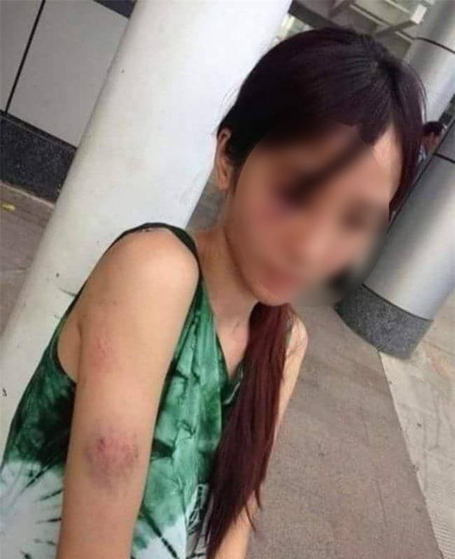 Xót xa hình ảnh người mẹ trẻ 19 tuổi thân tàn ma dại vì hở ra là bị chồng đánh - Ảnh 1.