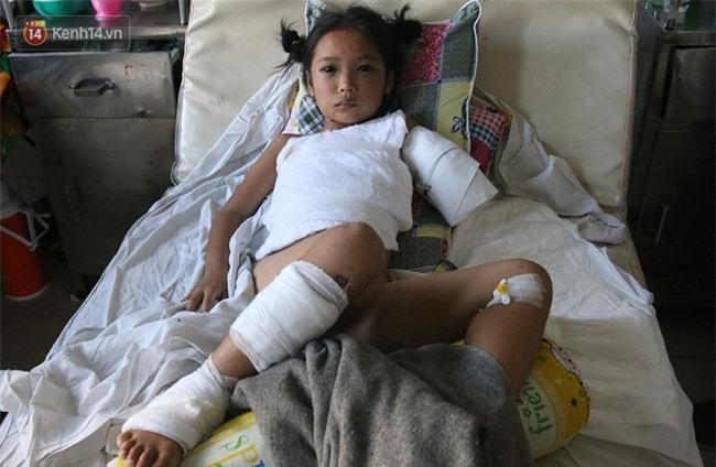 """Bé gái 8 tuổi bị cụt tay sau tai nạn ngày mùng 4 Tết: """"Ba ơi! Sao tay trái con ngắn hơn tay phải?!"""" - Ảnh 1."""