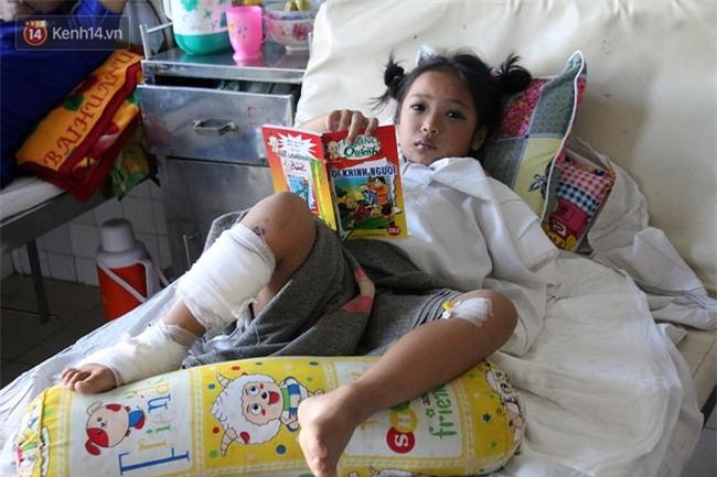 """Bé gái 8 tuổi bị cụt tay sau tai nạn ngày mùng 4 Tết: """"Ba ơi! Sao tay trái con ngắn hơn tay phải?!"""" - Ảnh 3."""