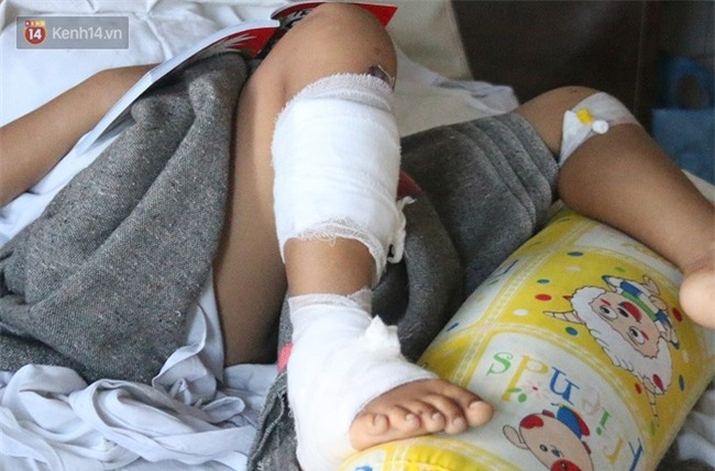 """Bé gái 8 tuổi bị cụt tay sau tai nạn ngày mùng 4 Tết: """"Ba ơi! Sao tay trái con ngắn hơn tay phải?!"""" - Ảnh 6."""