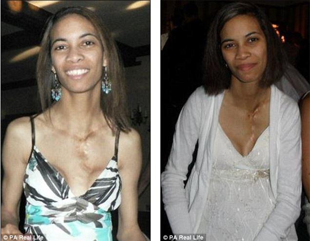Người phụ nữ trải qua 26 năm chịu những cơn đau bụng kì lạ mới phát hiện sự thật bất ngờ - Ảnh 1.