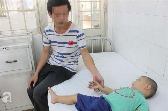 Nghịch bóng đèn bàn thờ ông Địa, bé trai 23 tháng tuổi bị bỏng nặng bàn tay - Ảnh 2.