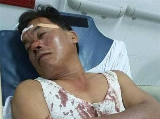 Ông Trung bị thương đang cấp cứu tại bệnh viện