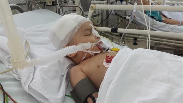 Sớm thiếu tình thương của cha, giờ bé An 22 tháng tuổi đã phải chịu nỗi đau tai nạn hành hạ. Ảnh PT