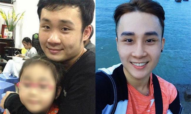 Bất chấp đau đớn, chàng trai Hà Nội chi 750 triệu đồng cắt bỏ xương sườn để có vòng eo bé xíu - Ảnh 4.