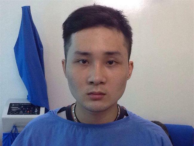 Bất chấp đau đớn, chàng trai Hà Nội chi 750 triệu đồng cắt bỏ xương sườn để có vòng eo bé xíu - Ảnh 5.