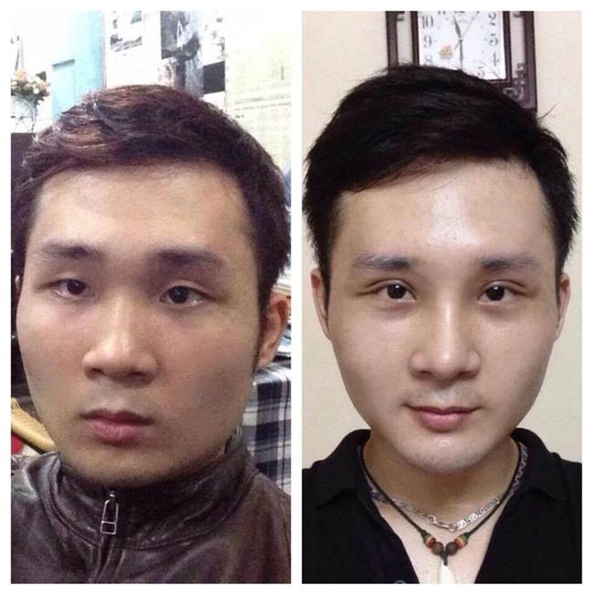 Bất chấp đau đớn, chàng trai Hà Nội chi 750 triệu đồng cắt bỏ xương sườn để có vòng eo bé xíu - Ảnh 10.