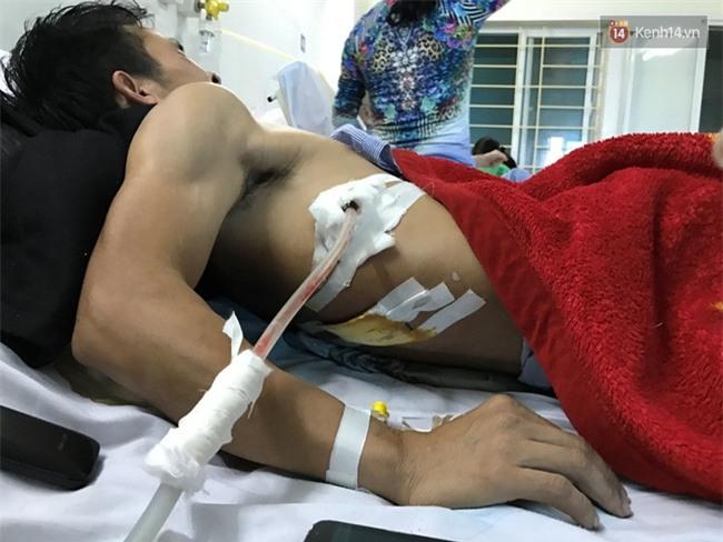 Người bị đâm sau khi đưa cô gái vào viện: Chưa hỏi đầu đuôi họ đã rút dao đâm vì tưởng tôi gây tai nạn - Ảnh 3.