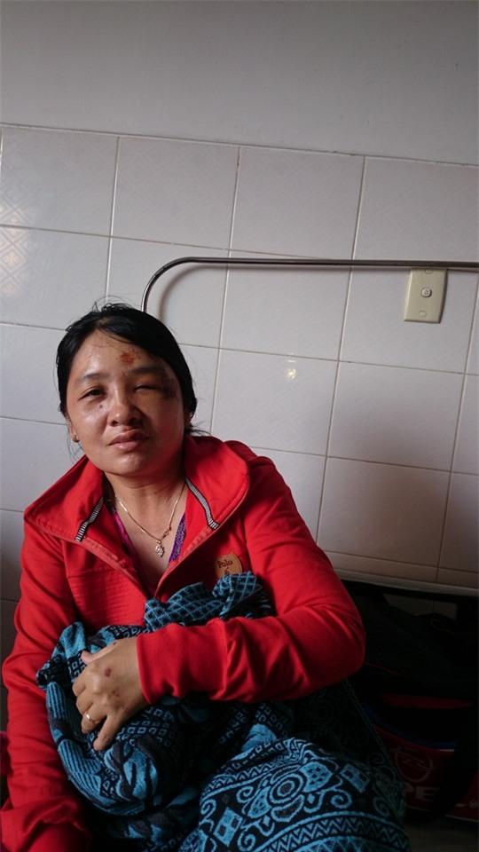 Bà Linh kể lại sự việc bị cướp.