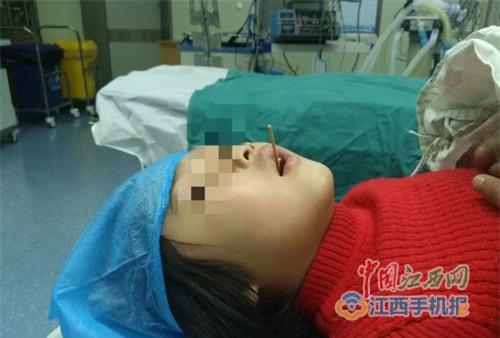 Đừng chủ quan: Bé gái ăn xúc xích bị que xiên đâm xuyên cổ họng - Ảnh 2.