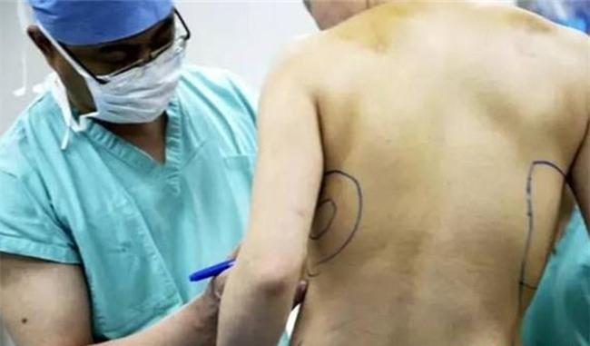 Sau 10 năm thẩm mỹ, người phụ nữ cay đắng gỡ miếng độn ngực đang dần trôi về sau lưng - Ảnh 3.