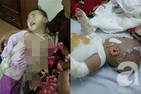 Mẹ bất cẩn, con trai 2 tuổi ngã vào nồi nước sôi bỏng toàn thân - Ảnh 1.