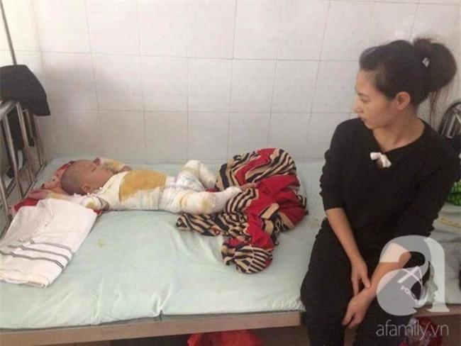 Mẹ bất cẩn, con trai 2 tuổi ngã vào nồi nước sôi bỏng toàn thân - Ảnh 2.