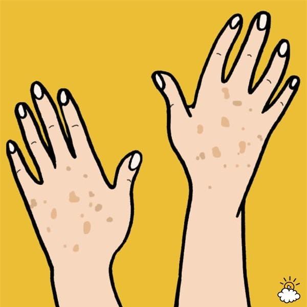 5 dấu hiệu da bị tổn thương do ánh mặt trời gây ra bạn không nên bỏ qua - Ảnh 1.