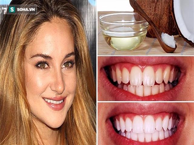 4 phương pháp giúp răng trắng lên trông thấy chỉ trong 7 ngày mà không cần gặp bác sĩ - Ảnh 1.