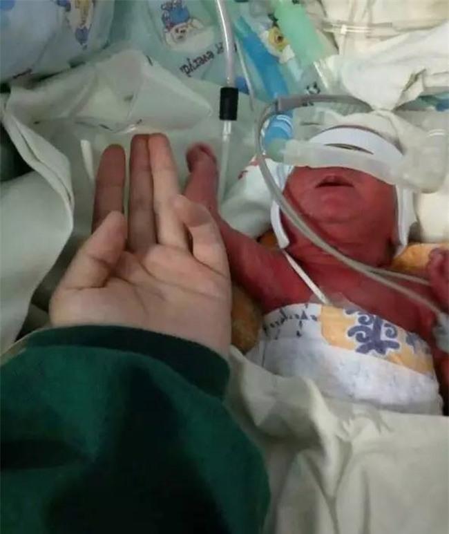 Chỉ nặng 950g và nằm lọt thỏm trong lòng bàn tay người lớn, đứa trẻ này vẫn sống sót kỳ diệu - Ảnh 1.