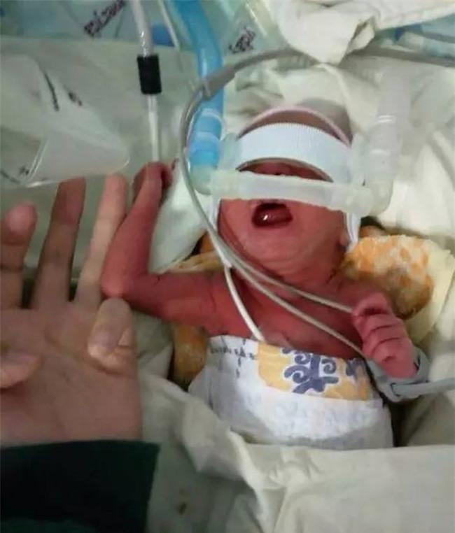 Chỉ nặng 950g và nằm lọt thỏm trong lòng bàn tay người lớn, đứa trẻ này vẫn sống sót kỳ diệu - Ảnh 2.