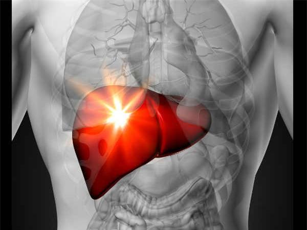 gan nhiễm mỡ, điều trị gan nhiễm mỡ, xơ gan, ung thư gan, nước ép