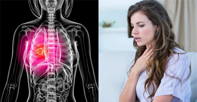 Triệu chứng này của bệnh ung thư phổi thường xuất hiện ở giai đoạn đầu nhưng rất khó nhận ra - Ảnh 1.