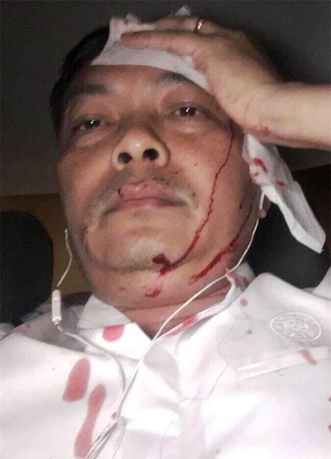 Giam doc nhan su ca phe Trung Nguyen bi danh o Sai Gon hinh anh 1