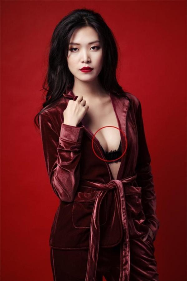 Vòng một của Hoa hậu Thùy Dung trông mấp mô bất thường với bên cao, bên thấp.