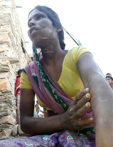 Ấn Độ: Nàng dâu trẻ bị gia đình chồng tra tấn dã man vì một cuộc gọi lỡ - Ảnh 2.
