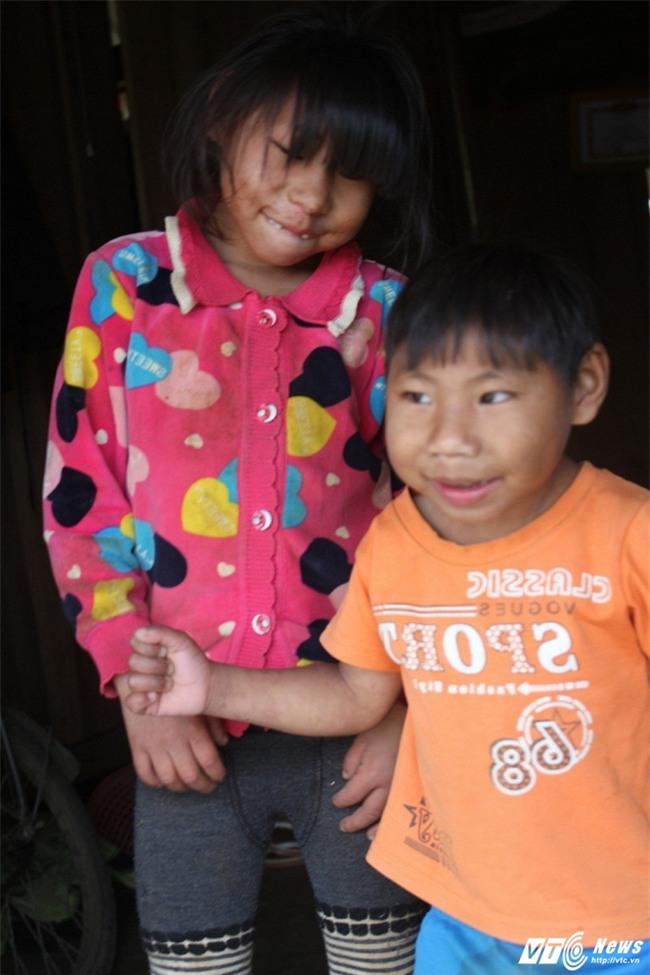 2 chị em mắc bệnh lạ, chỉ thích đập đầu xuống đất rồi cười - Ảnh 1.