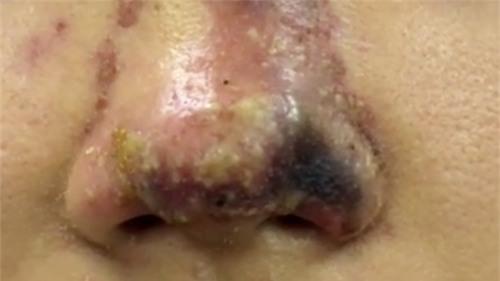 Thiếu nữ 17 hoại tử mũi vì nâng ở spa - Ảnh 1.