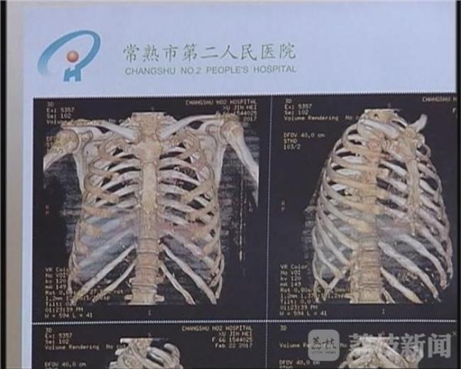 Bà mẹ U70 bị con trai ruột đánh gãy 11 chiếc xương sườn, thủng màng nhĩ tai trái - Ảnh 2.