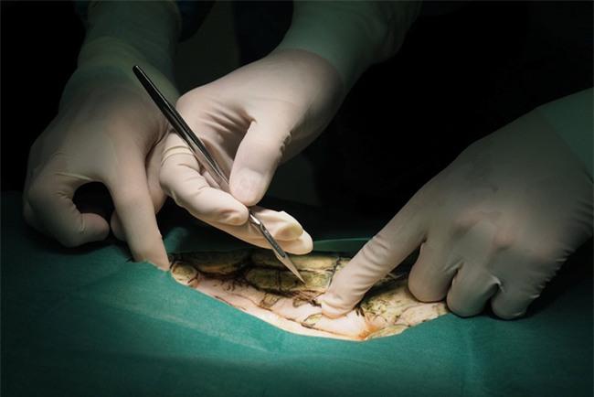 Video: Người dân thả tiền cầu may, chú rùa suýt chết vì nuốt phải gần 1.000 đồng xu - Ảnh 3.