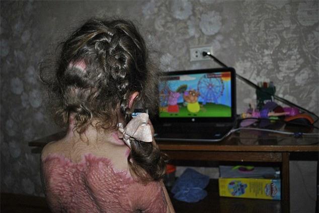Cảnh báo: Trò chơi trực tuyến khiến bé gái 5 tuổi bị bỏng nặng, toàn thân biến dạng - Ảnh 1.