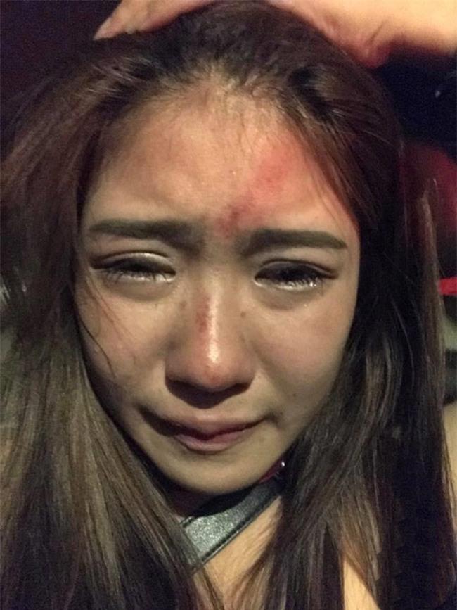 """chan dung co gai thai bi ban trai danh vi khong chiu """"trao than"""" - 2"""