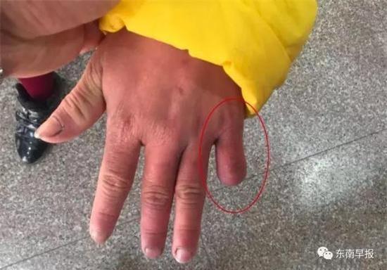 Bé gái 12 tuổi bị mẹ đẻ dùng kéo cắt ngón tay, châm thuốc lá đốt da - Ảnh 1.