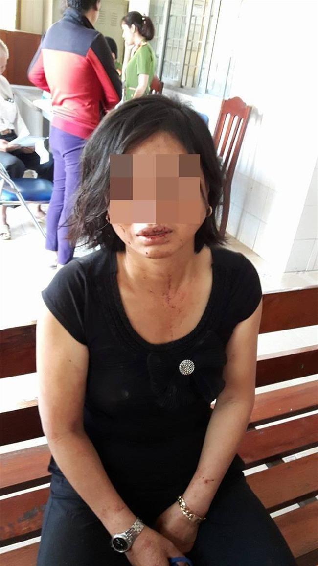 """Con trai người phụ nữ bị chồng bạo hành tại Đồng Nai: """"Mẹ bị cha dượng đánh suốt 23 năm nay - Ảnh 1."""