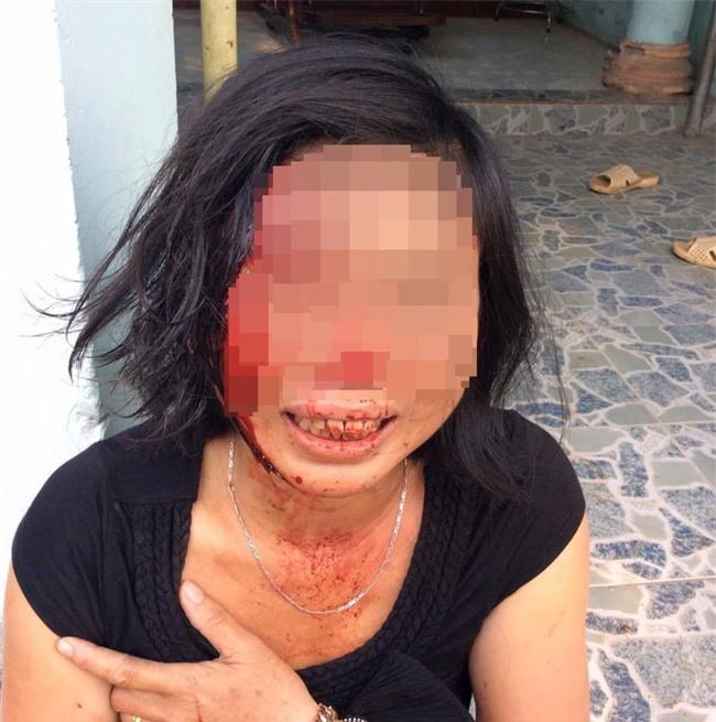 """Con trai người phụ nữ bị chồng bạo hành tại Đồng Nai: """"Mẹ bị cha dượng đánh suốt 23 năm nay - Ảnh 7."""