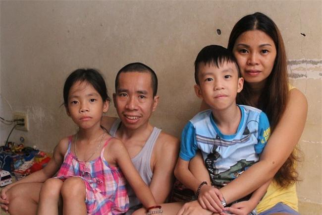 Người em trong cặp song sinh dính liền Việt - Đức phải nhập viện vì bệnh nặng - Ảnh 2.