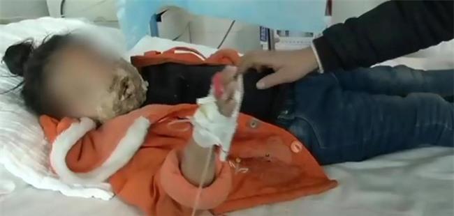 Bé gái 4 tuổi bị biến dạng khuôn mặt vì điện thoại của cha nổ khi đang sạc - Ảnh 1.