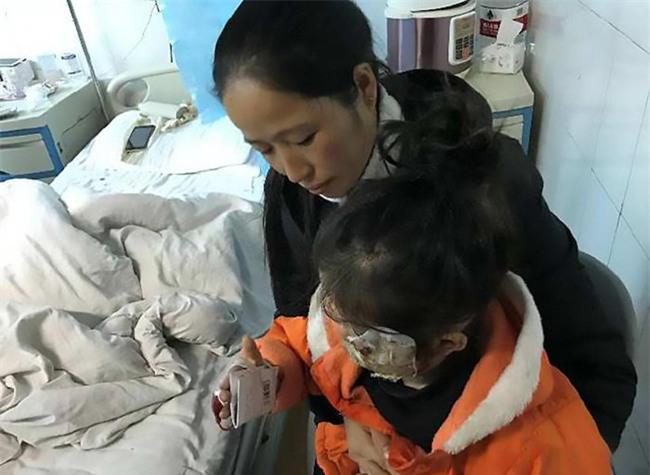 Bé gái 4 tuổi bị biến dạng khuôn mặt vì điện thoại của cha nổ khi đang sạc - Ảnh 2.