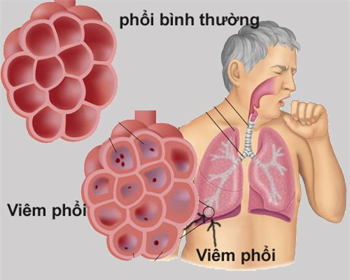 8 dấu hiệu của bệnh viêm phổi bạn không nên bỏ qua - Ảnh 1.