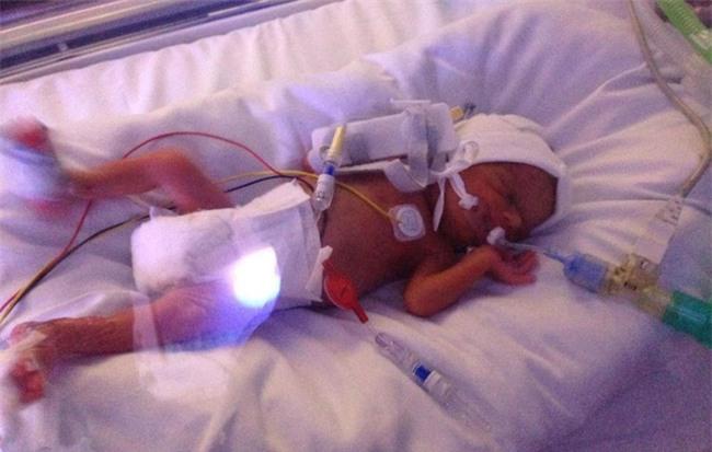 Bé gái sơ sinh được cứu sống từ tay tử thần nhờ hành động kì lạ của chị gái - Ảnh 2.