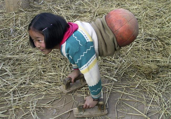 Nếu bạn đã từng bật khóc vì cô bé bóng rổ, thì cũng sẽ động lòng với thiên thần kém may mắn này - Ảnh 1.